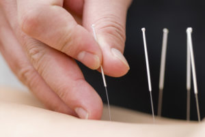How Acupuncture Helps Injury Healing