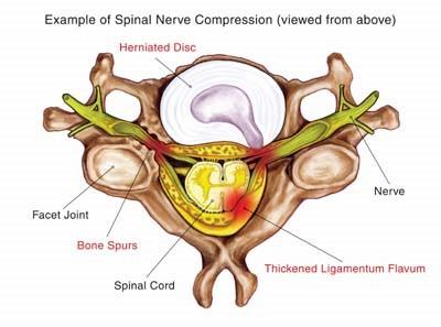 The Chiropractic Adjustment 2