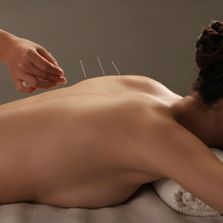 How Acupuncture Massage Helps Joint Pain
